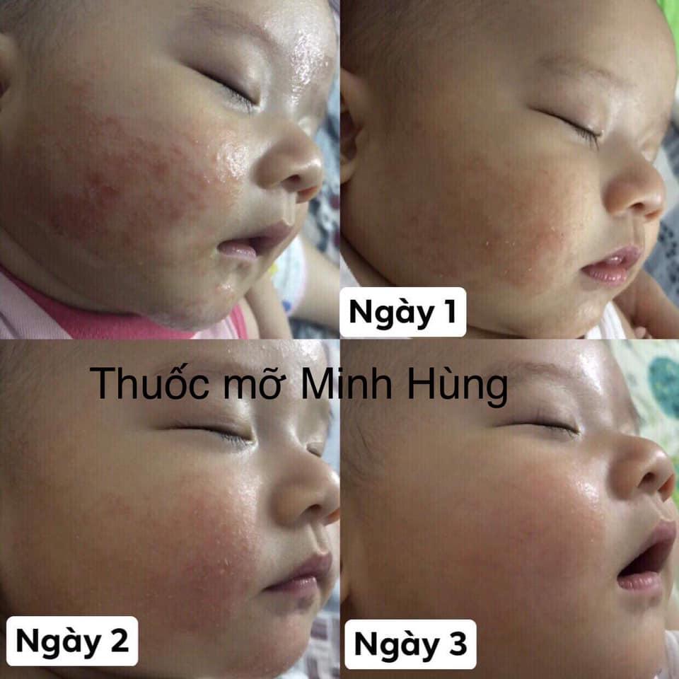 Thuoc Mo Minh Hung 3