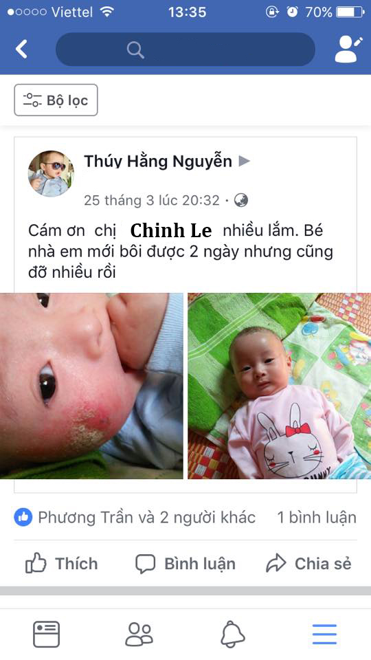 Thuocmominhhung (4)